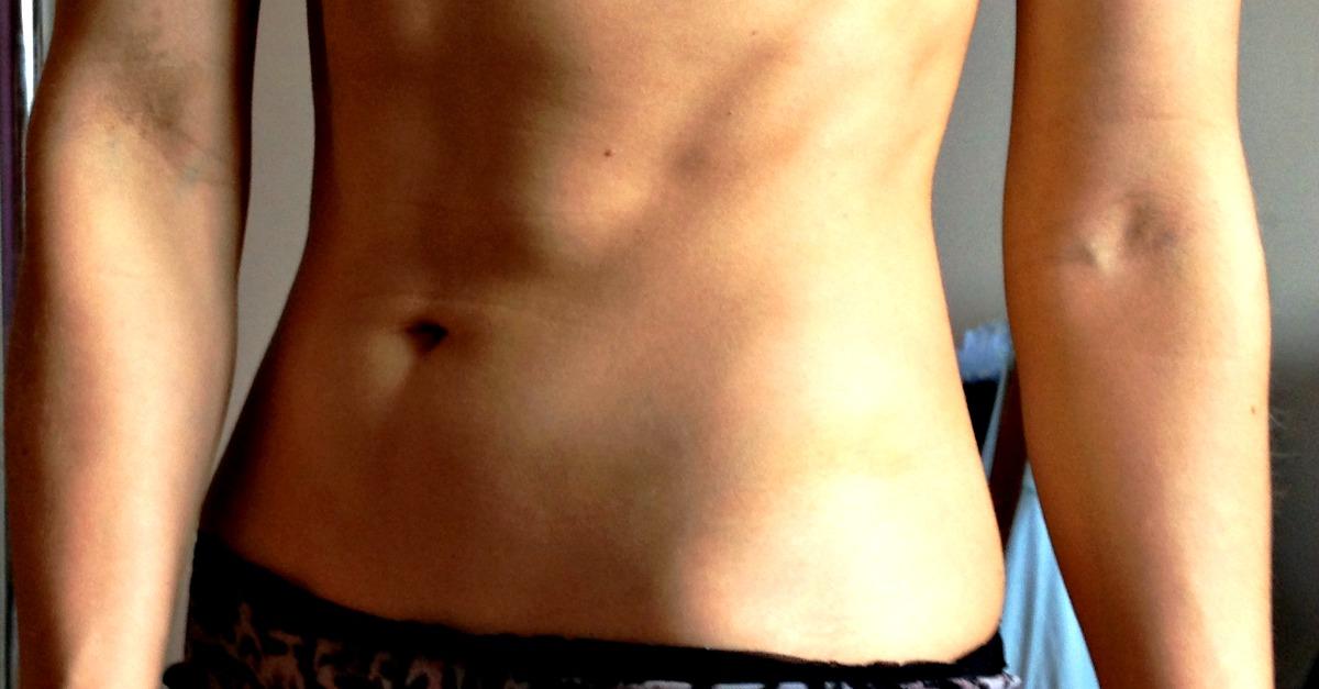 Czy musisz miećkaloryfer na brzuchu? – Moja historia